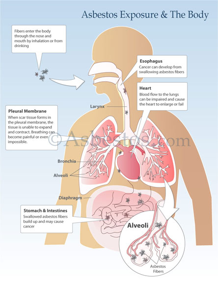 Asbestos Exposure to the Body